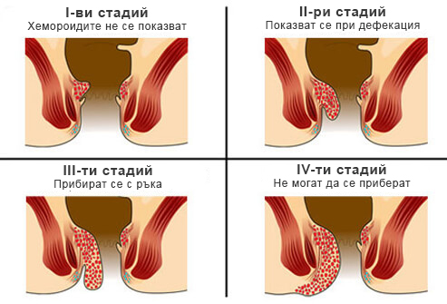 hemoroidi-stadii-na-razvitie