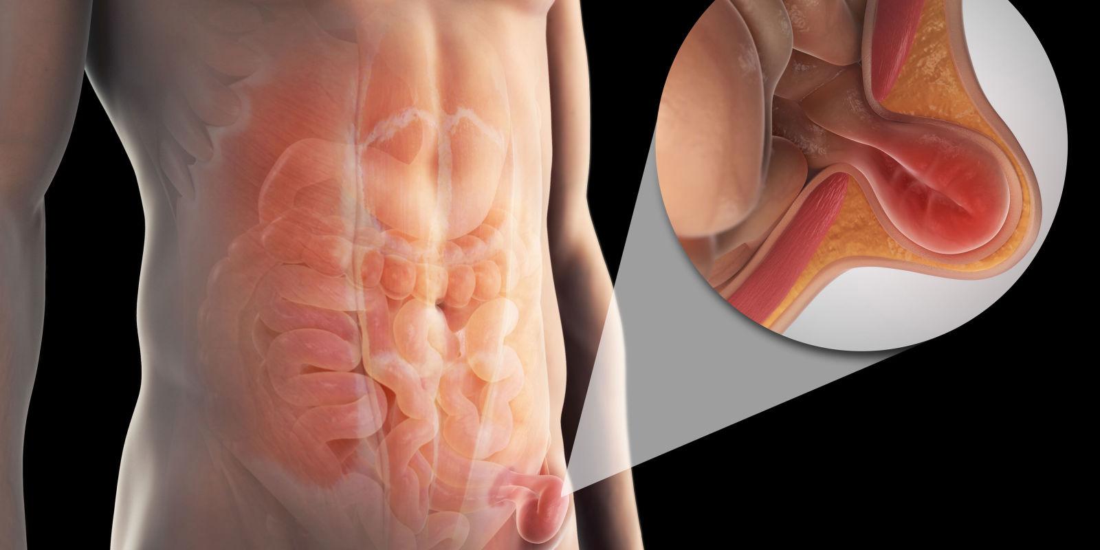 Херния на стомаха Move&Flex